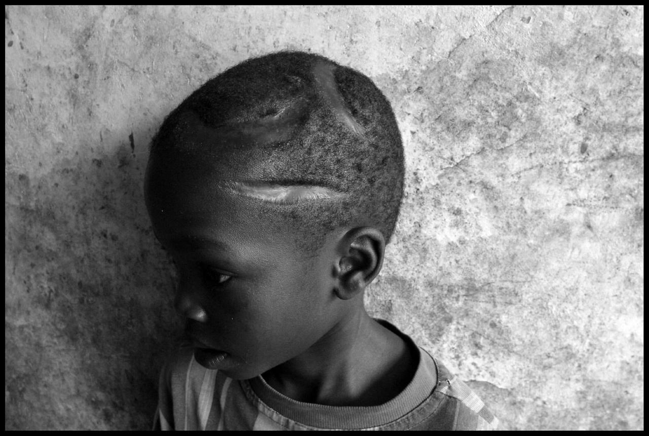 RDC - dans un orphelinat, un enfant survivant aprè