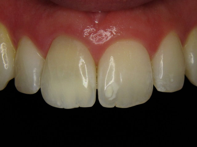 Störend gelb verfärbte Zähne ...