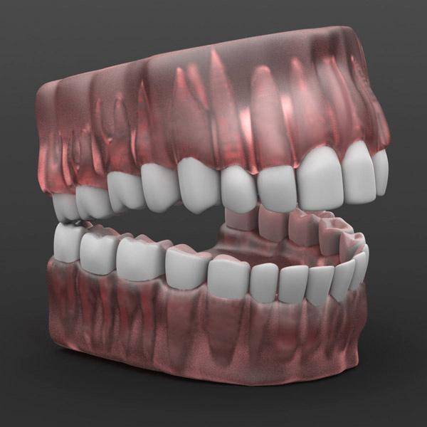 Solidworks Human Teeth Model Cadhuman Human Cad Models