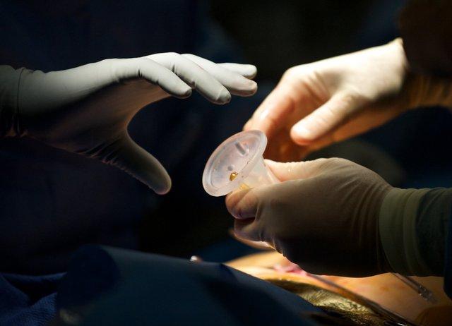 123914 scarless surgery 048.jpg