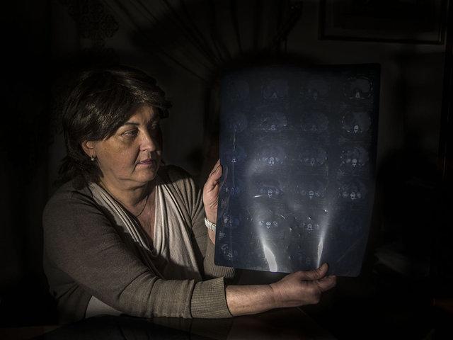 4.Luisa, cancer victim