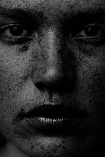 150304_Freckles-7465.jpg