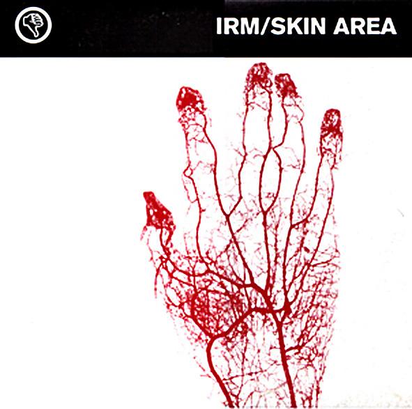 IRM / Skin Area EP