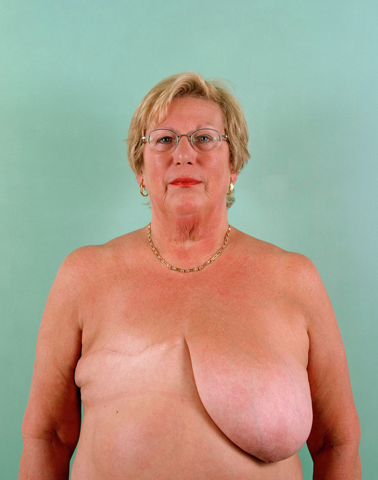 Janet West, aged 64.Breast Cancer Series.jpg