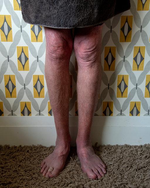 Dad's legs.jpg