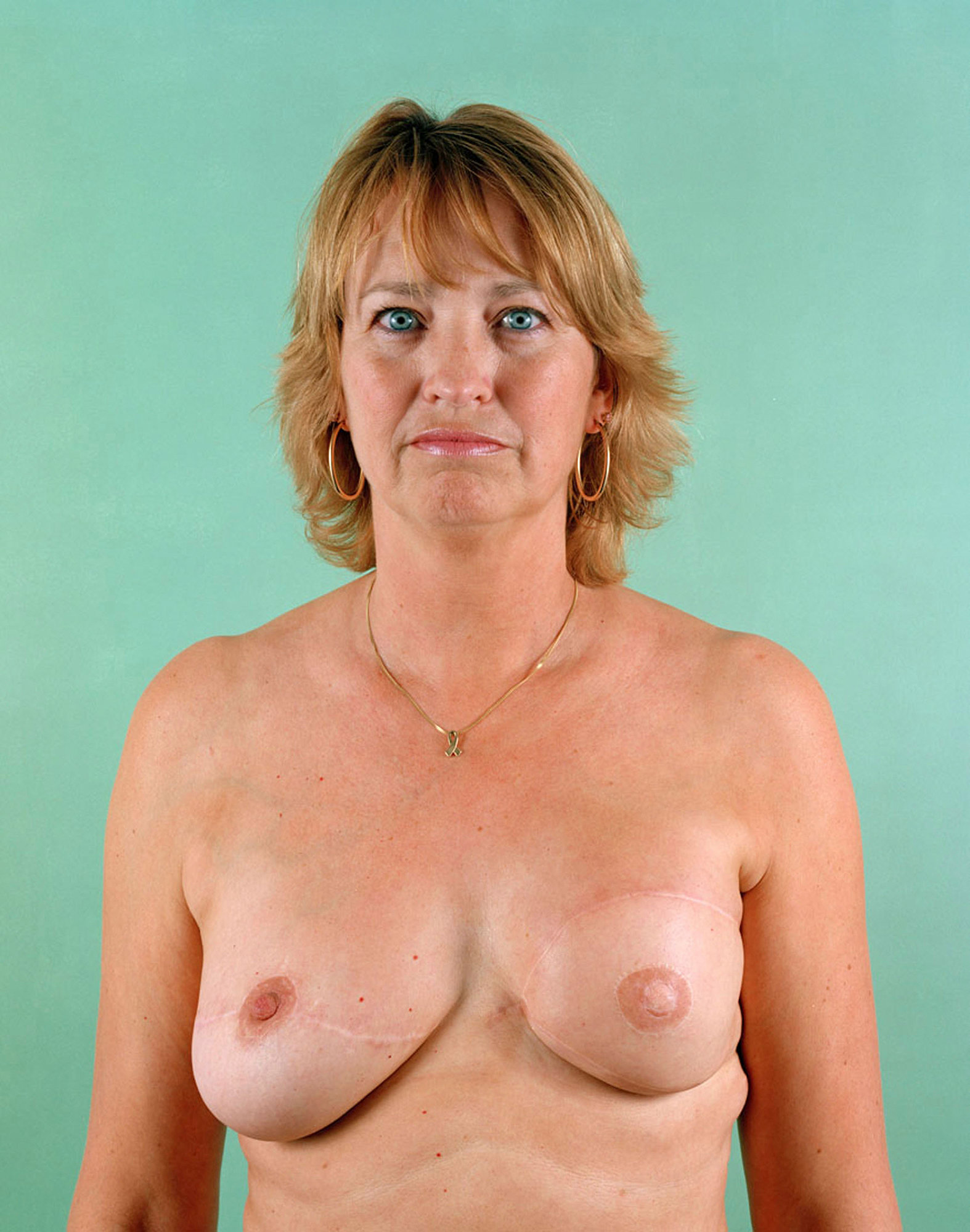 Pauline Polley, aged 42.Breast Cancer Series.jpg