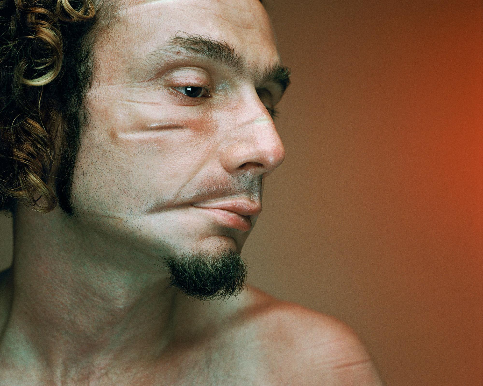 'Hidden Hurt I' Gold in Photography, 2009 Graphis International Awards