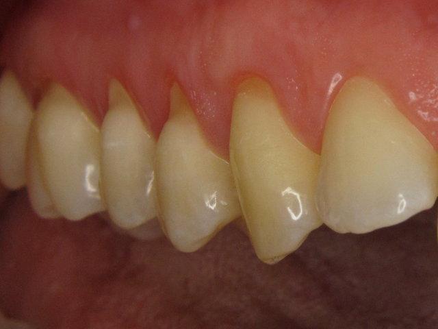 Empfindliche Zahnhälse (Putzdefekte)