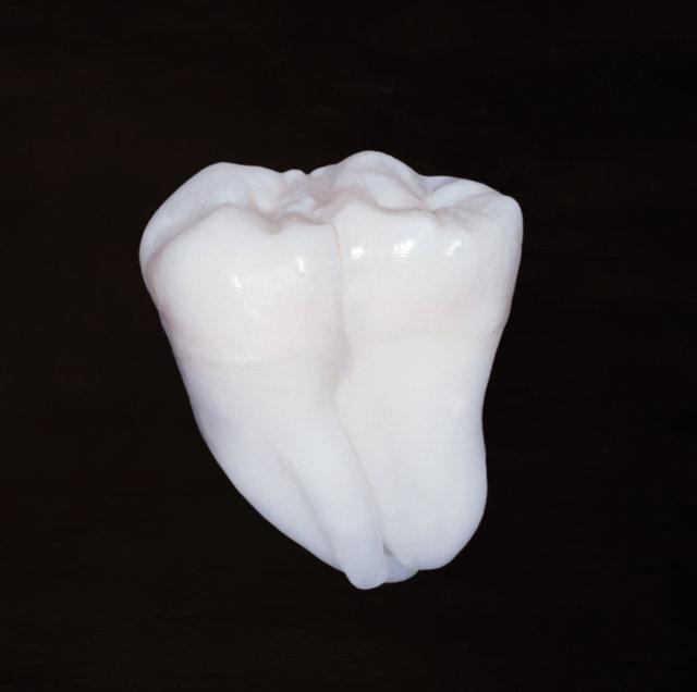 Zwillings-Zahn (Vorderseite)