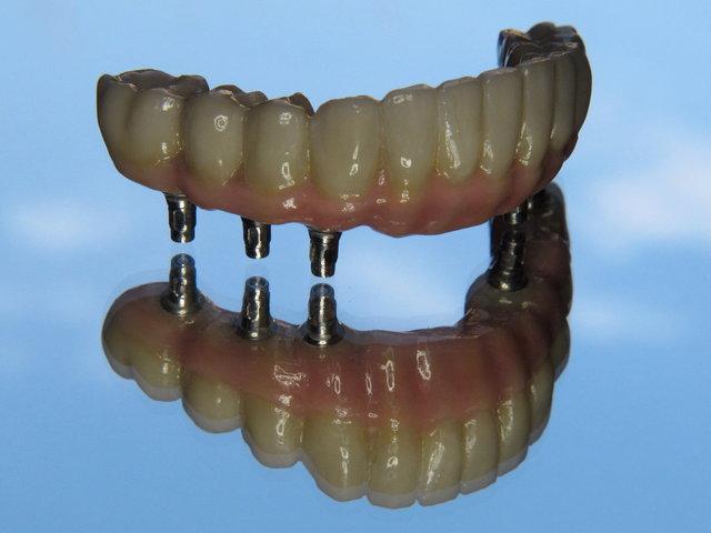 Implantatbrücke by CLINICDENT ✓
