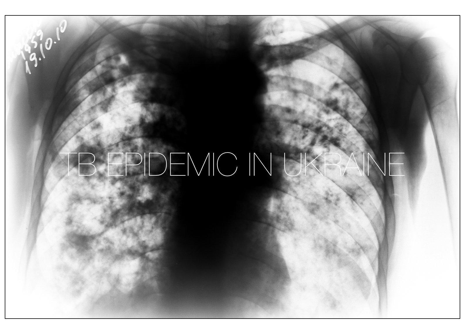 TB epidemic in Ukraine.001.jpeg