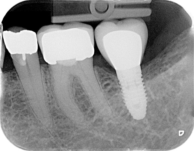 Implantat by CLINICDENT ✓