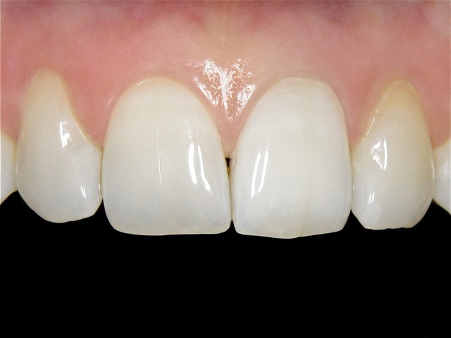 Bleaching by CLINICDENT ✓