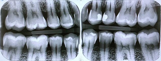 Bissflügel-Röntgenbilder zur Karieskontrolle ✓