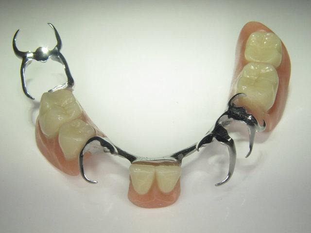 Unterkiefer Teilprothese (Modellguss)
