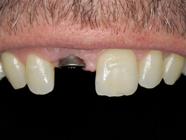Abdeckschraube zum Implantat ...