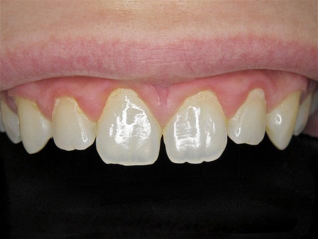 Sichtlich unter Verschmutzung entzündetes Zahnfleisch ...