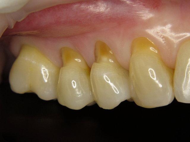 Putzdefekte mit offenen empfindlichen Zahnwunden
