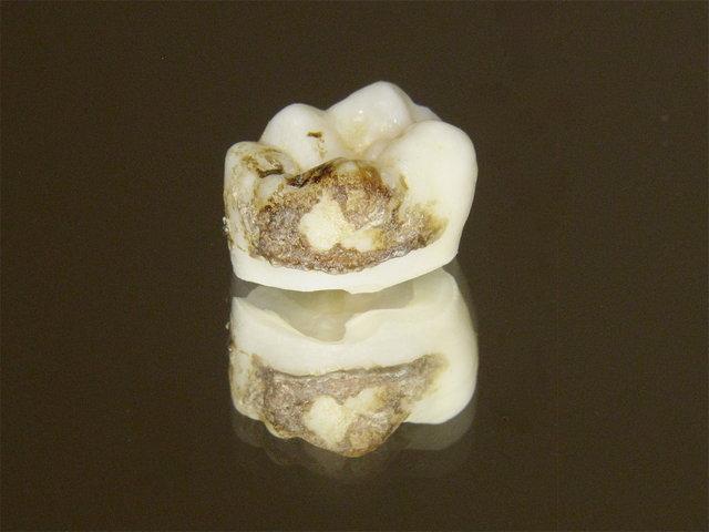 Weisheitszahn als Schmutznische für Zahnstein