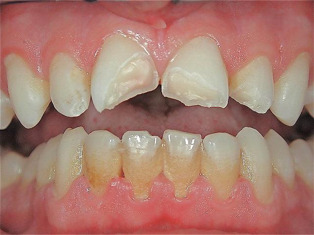 Zahnfrakturen aller vier Scheidezähne ...