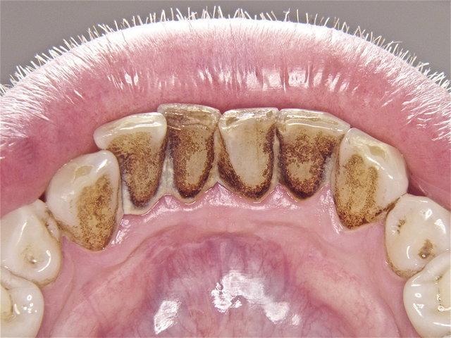 Unterkieferfront als 1. Riskostelle für rasche Zahnsteinbildung ...