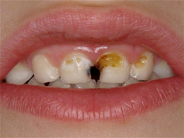 Kariöse zerstörte Frontzähne ... (Zucker?)