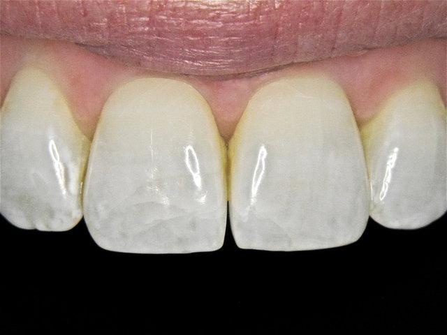 Risse nach Zahnunfall ...