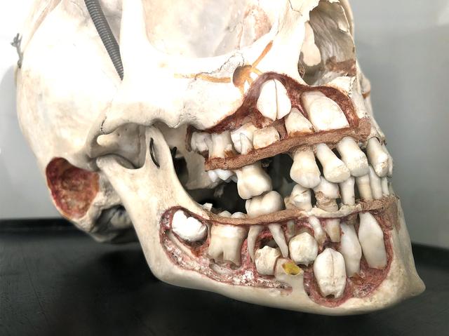 5-jähriger Kinderschädel mit Sicht auf den Zahnwechsel