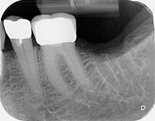 Fehlender Zahn im Röntgenbild ...