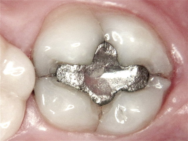 Amalgam-Plombe mit Zahn-Rissen ...