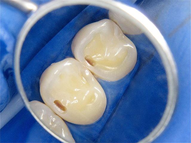 Eröffnete Karies in den Zahnzwischenräumen ...