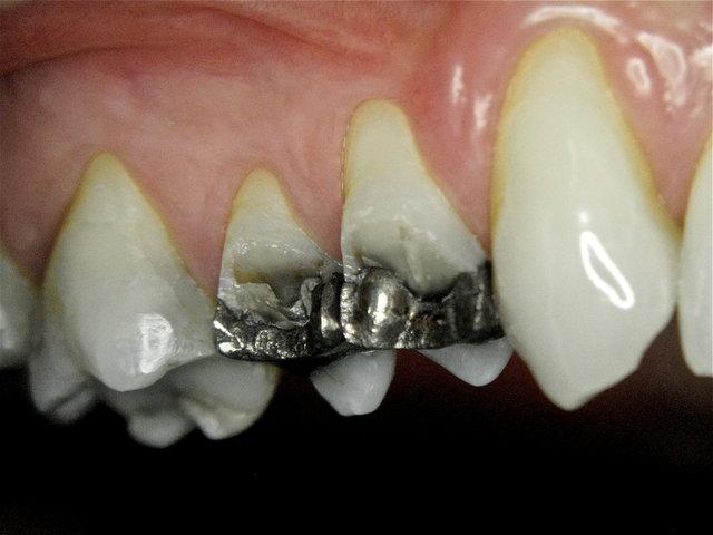 Zahnwand-Fraktur neben Amalgam-Füllungen ...
