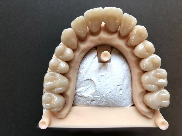 Keramik-Kronen (digitale Abformung)