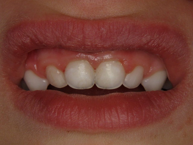 Fertiges Resultat by CLINICDENT ✓