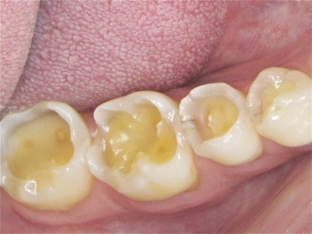 Säuregeschädigte Zähne ...