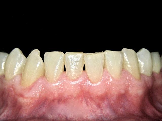 Gesunde Gingiva nach Dentalhygiene by CLINICDENT ✓