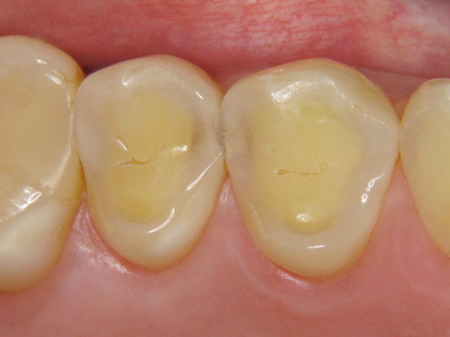 Durchschimmernde Karies zwischen den Zähnen ...