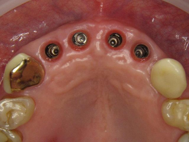Vier Implantate ...