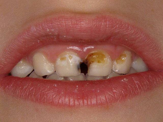 Kariöse zerstörte Frontzähne (Zucker?)
