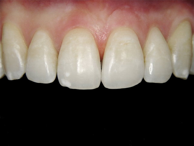 Mikroabrasion by CLINICDENT ✓