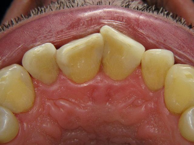 Dentalhygiene und Composit-Füllungen by CLINICDENT ✓