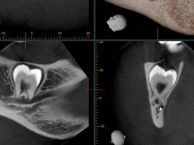 3D Röntgenbild