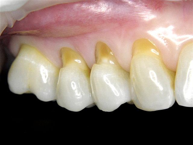 Putzdefekte mit offenen empfindlichen Zahnwunden ...