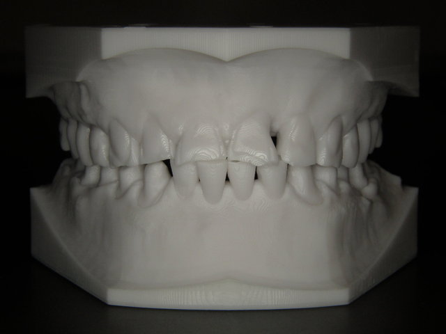 Digitales Modell vom 3D-Drucker