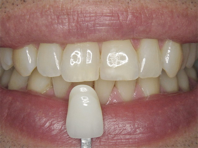 Farbwahl by CLINICDENT ✓