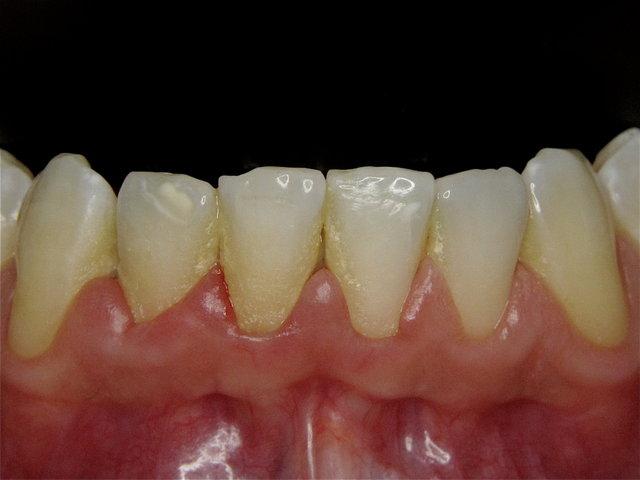 Gelblicher Zahnstein und entzündetes Zahnfleisch ...
