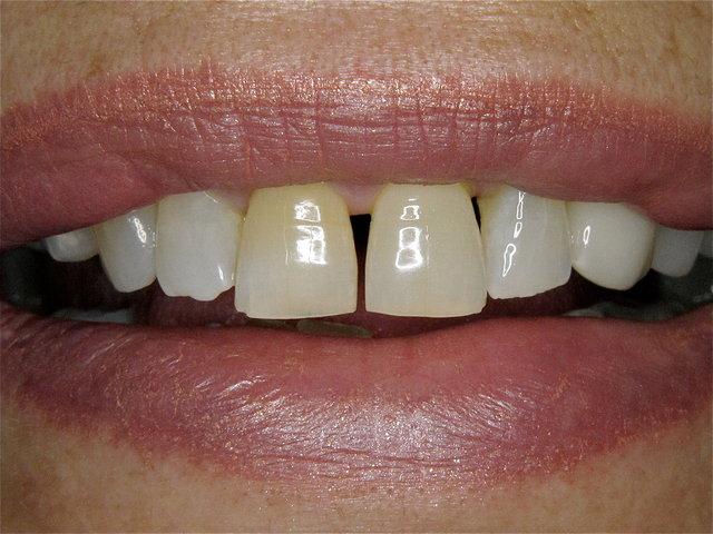 Subjektiv störende Front-Lücken mit gelblichen Zähnen ...
