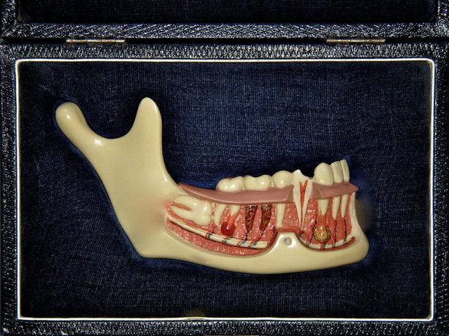 Unterkiefermodell mit Sicht auf die Wurzeln