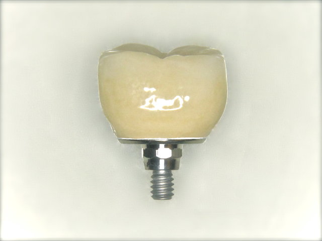 Implantatkrone by CLINICDENT ✓