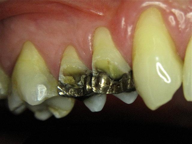 Zahnwand-Abfraktur neben Amalgam-Füllungen